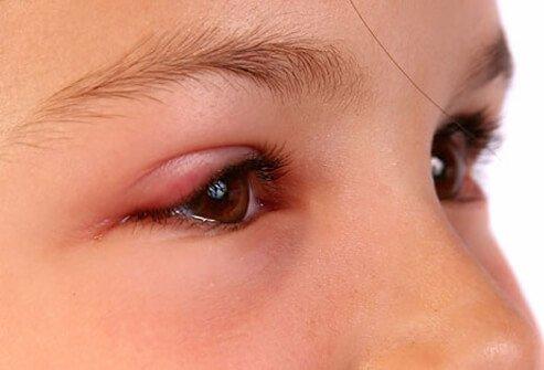 Saúde orienta foliões com sintomas de conjuntivite no Carnaval