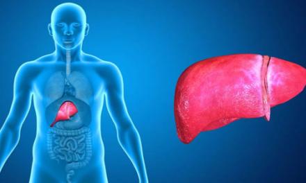 Esteatose hepática: como diagnosticar, prevenir e tratar