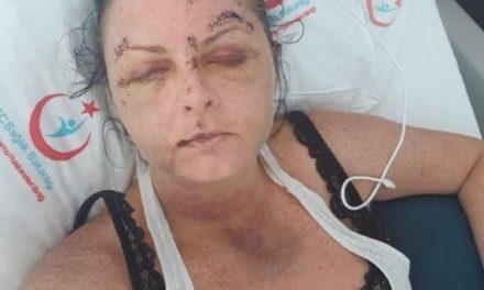 Turista é espancada por homem depois de recusar sexo